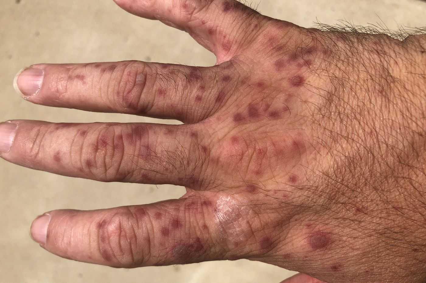 chto-delat-esli-ukusil-kleshh-foto-video-simptomy-i-metody-borby-31