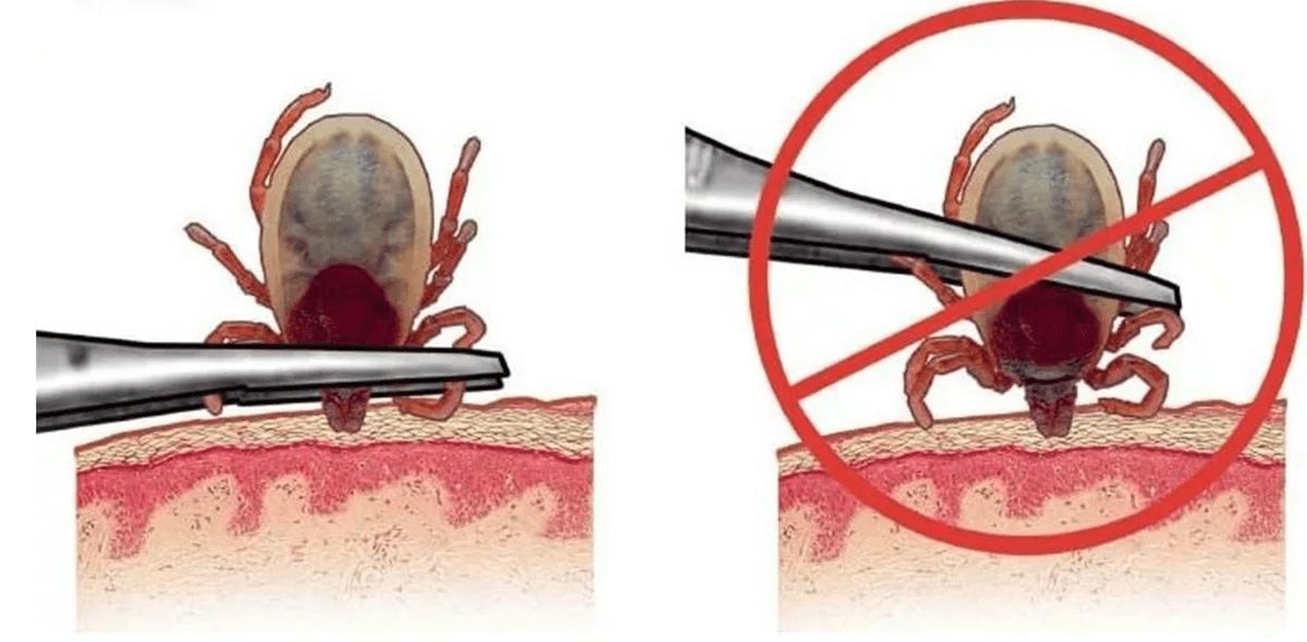 chto-delat-esli-ukusil-kleshh-foto-video-simptomy-i-metody-borby-40